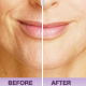 Curse fine lines…Hello injectable fillers