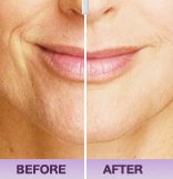 Juvederm before & after pic