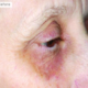Illuminating Eye and Lip Peel